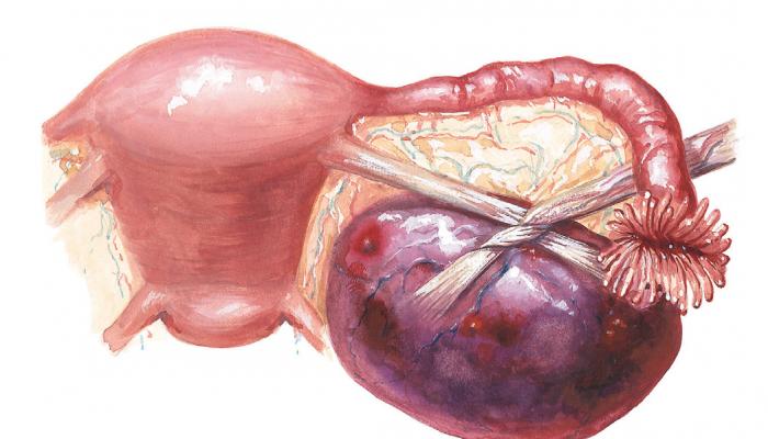 Киста яичника симптомы и лечение женщины. Различные взгляды
