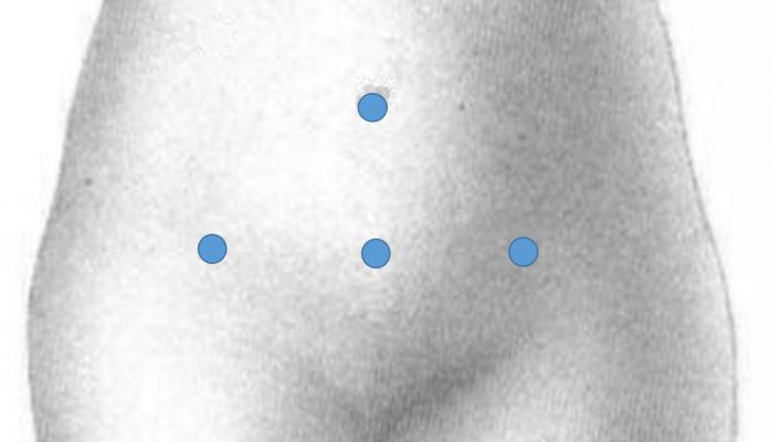 гинекология лапароскопия киста яичника