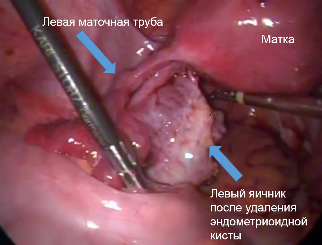 Удаление кисты яичника методом лапароскопии