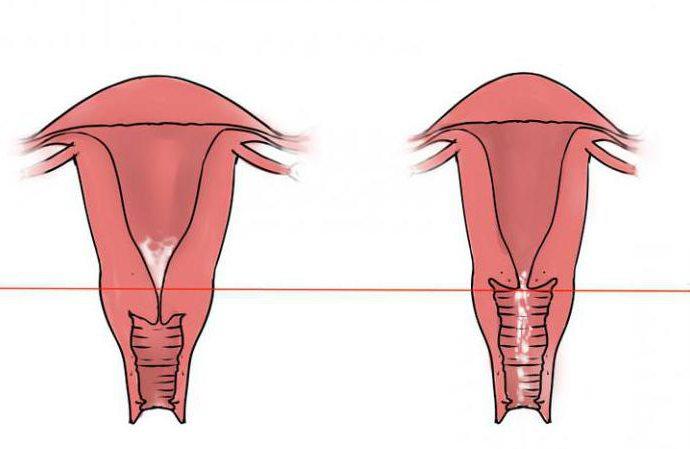 Что такое гипертрофия шейки матки почему она развивается