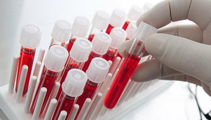 Пониженный фибриноген в крови при беременности