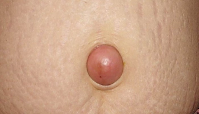 Боль в районе пупка при беременности