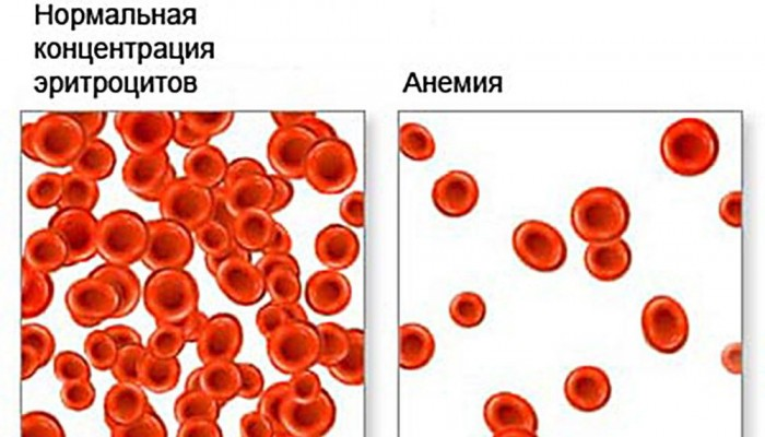 Гемоглобин 107 при беременности