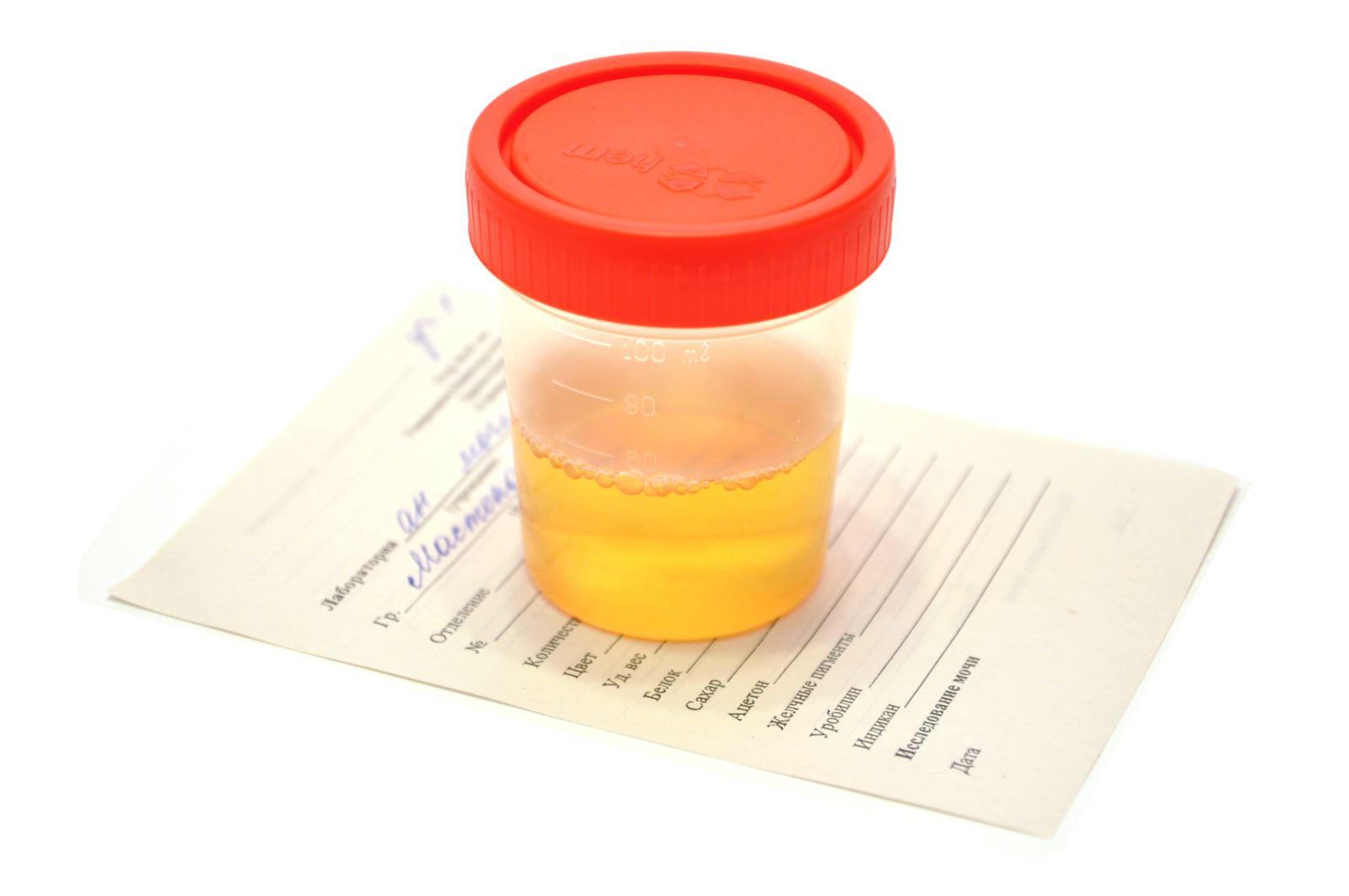 Анализ мочи при беременности норма