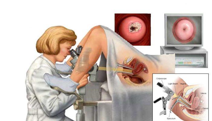 воспалительный процесс в гинекологии симптомы лечение
