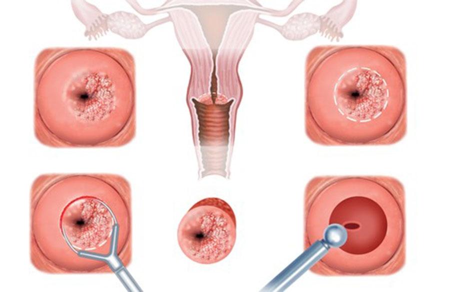 Лейкоплакия шейки матки: что это такое? Лечение