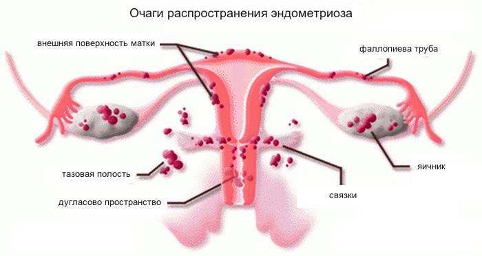Спираль Мирена при эндометриозе – плюсы и минусы