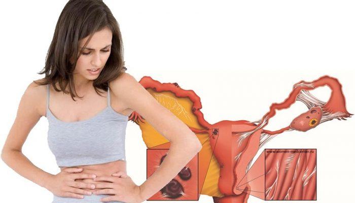 Спайки по гинекологии болят