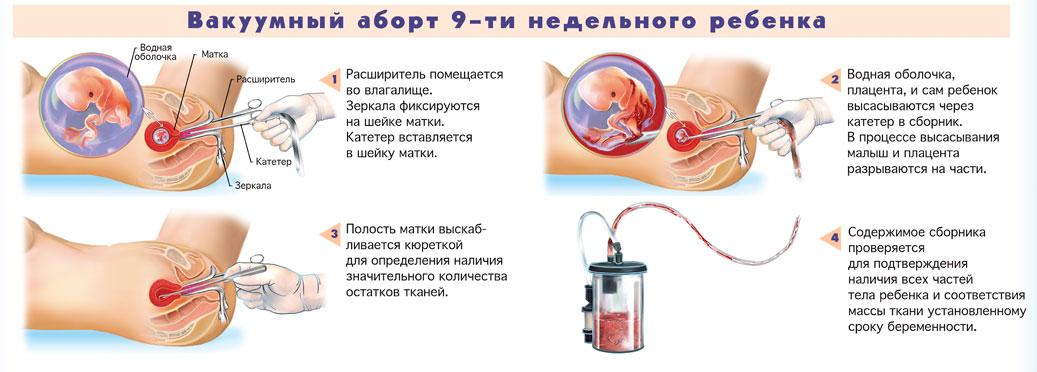 Медицинский аборт, осложнения прерывания беременности