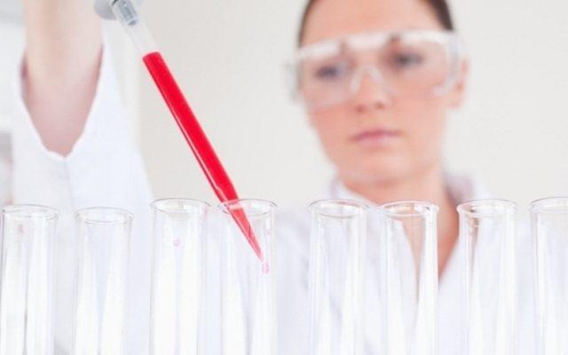 Анализы на гормоны по гинекологии (прогестерон и эстроген), когда сдавать анализ крови у женщин. На какой день цикла сдавать анализы на женские гормоны (таблица)