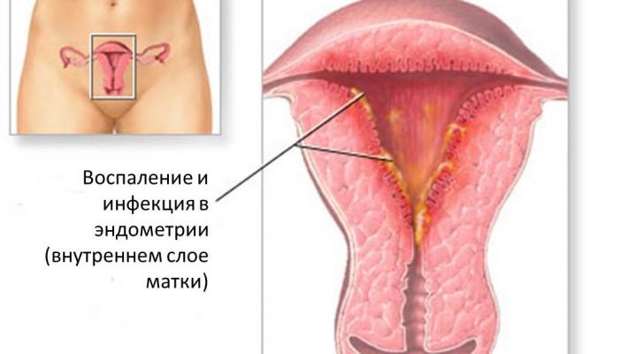 Причины кровянистых выделений между месячными