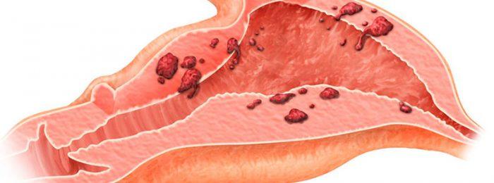 Наружный эндометриоз 3 степени - Эндометриоз