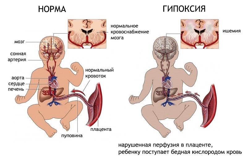 gipoksija-vnutriutrobnaja2
