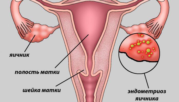 Как лечить эндометриоз в гинекологии