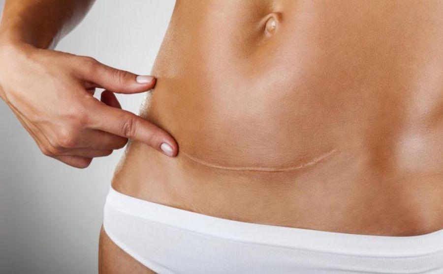 Беременность после кесарева сечения, через сколько месяцев допустимо?