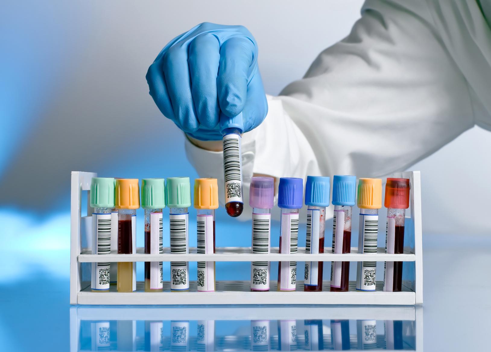 Анализы при беременности по триместрам список расшифровка