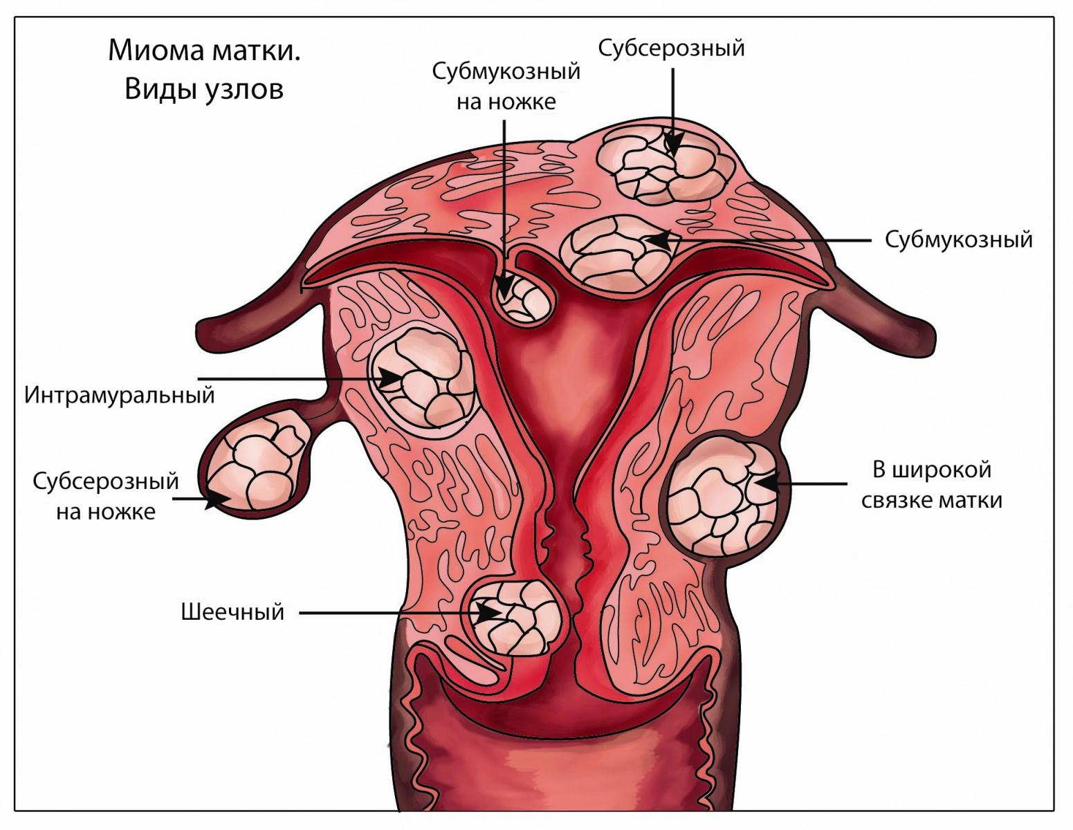 Тянет низ живота на 3 неделе беременности: причины и лечение