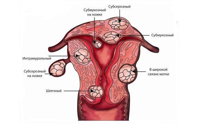 гинекология миома шейки матки