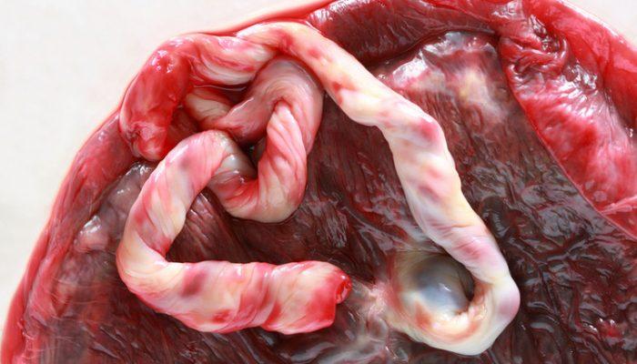Отслойка плаценты на раннем сроке