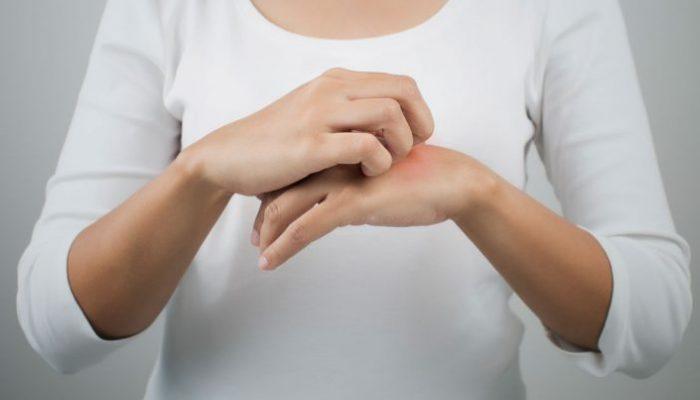 Чем лечить молочницу у женщин: препараты системного и местного действия, профилактика кандидоза