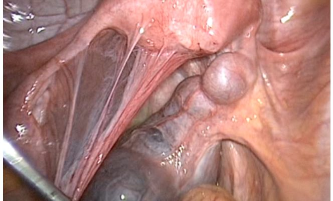 тампоны с лидазой в гинекологии как делать