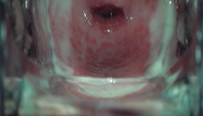 Мазь для заживления слизистой в гинекологии