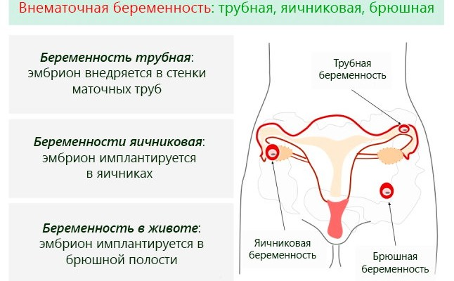 Могут ли быть кровянистые выделения при беременности
