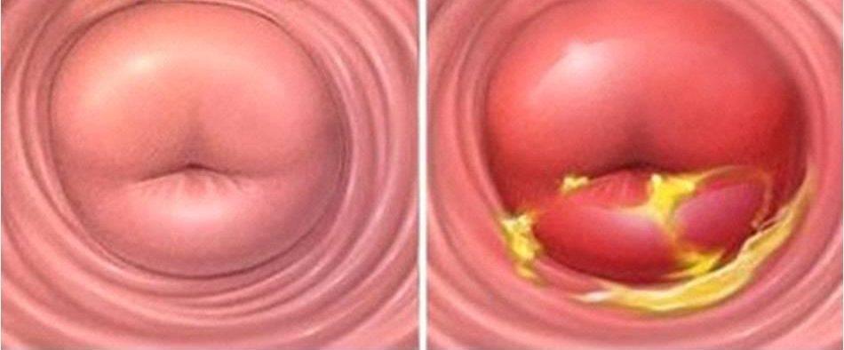 Чем лечить воспаление шейки матки