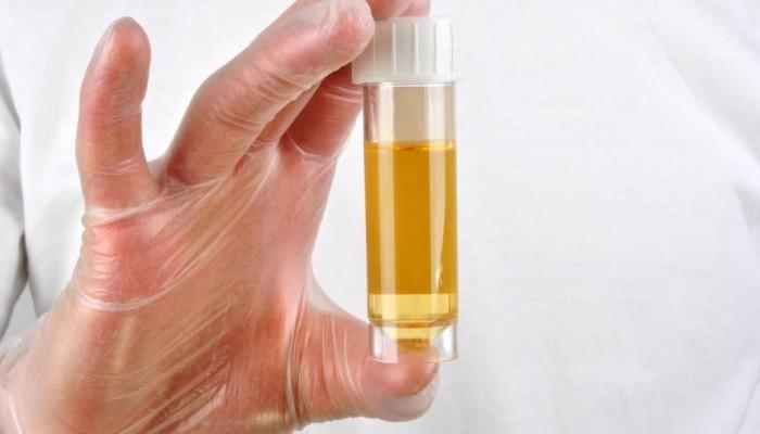 eine Urinprobe in einer Probenflasche