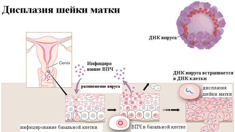 displaziya_shejki_matki