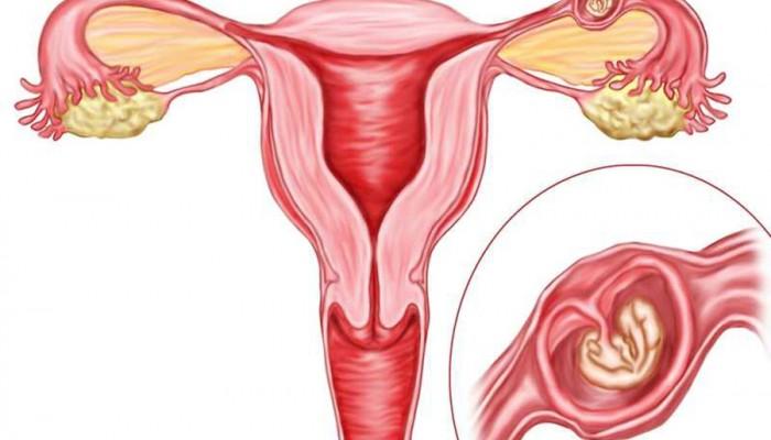 Ectopic-Pregnancy_vnematochnaya-beremennost