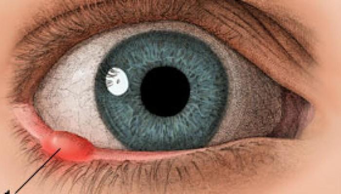 Eye-09-s-w1200-h600-q75-m1445457208
