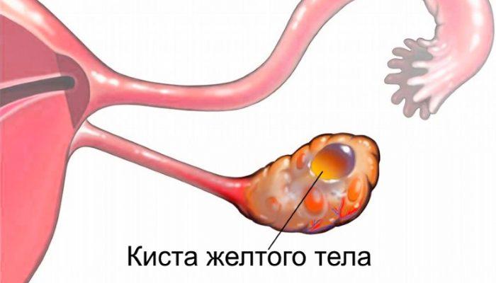 lechenie-kistyi-zheltogo-tela-pravogo-i-levogo-yaichnika-simptomyi-prichinyi_7155