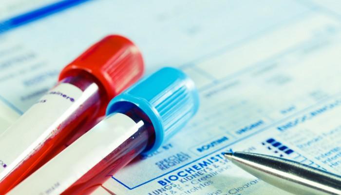 blood_testing