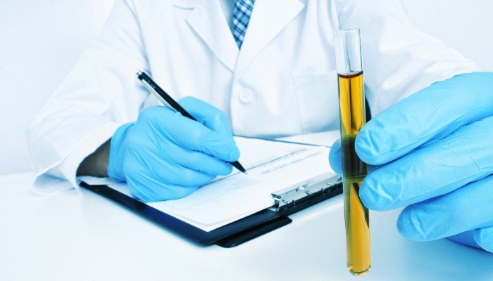 a man wearing white coat and blue medical gloves holding a urine sample in his hand
