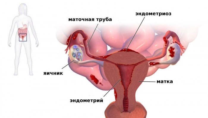 endometrioz1