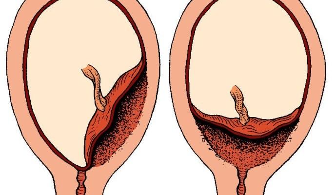 placenta1-1024x519