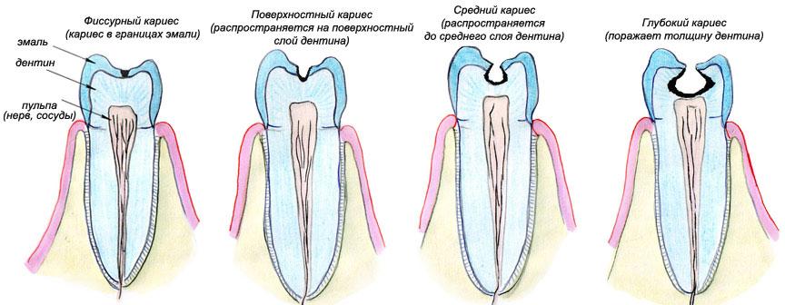 pochemu-silno-bolit-zub-mudrosti-2